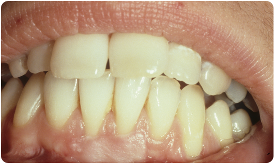 Through soft tissue grafting, the gums are reconstructed