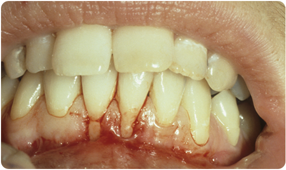 A picture of someone missing much of their lower gums, their teeth clearly exposed