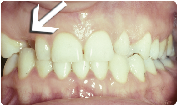 A picture of one crooked tooth, leading to gaps in the front teeth