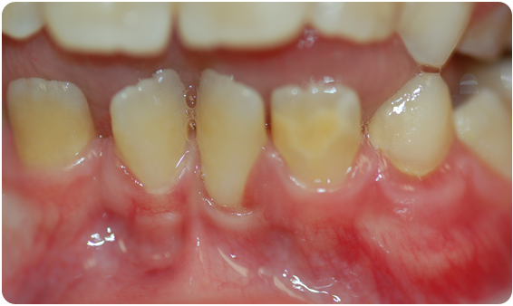 A picture of the boy's crooked teeth