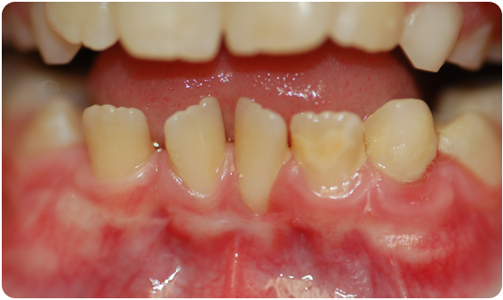 A picture of the boy's mouth after the correction procedure