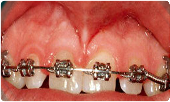 A picture of crooked teeth before the procedure