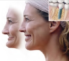 Facial bones for dental implants