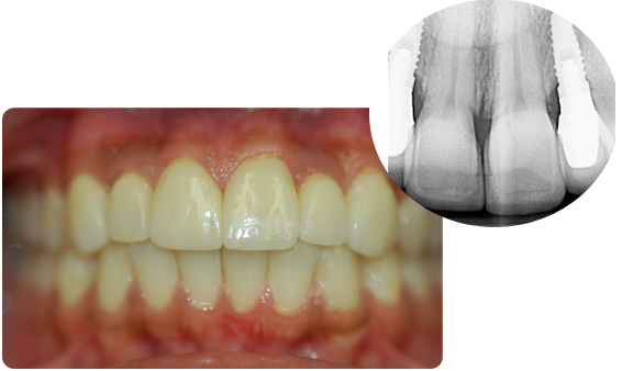 A picture of dental implants that look no different than regular teeth