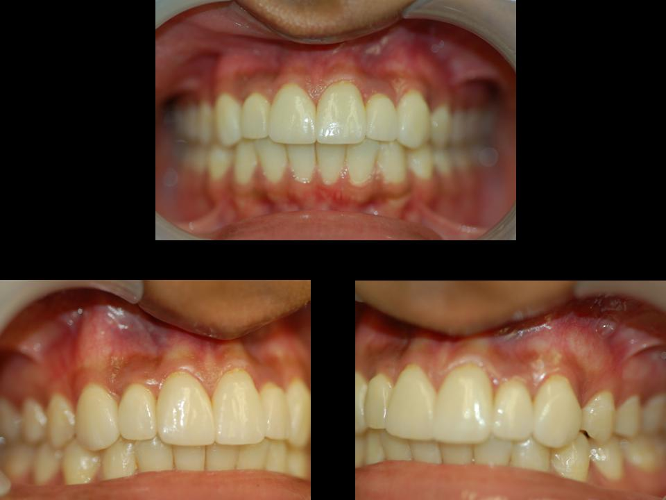 A patient's mouth is shown from different angles, all of the teeth look real