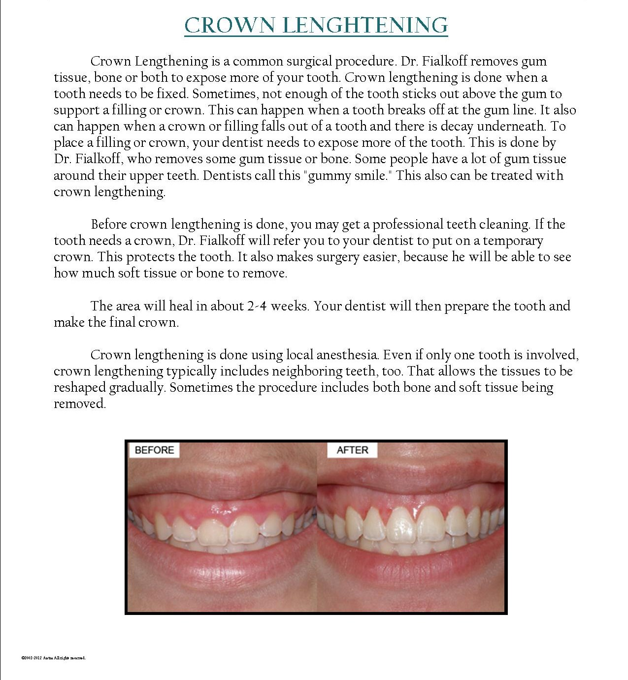 How Much Is A Crown >> Dr Bernard Fialkoff Crown Lengthening Dr Bernard Fialkoff