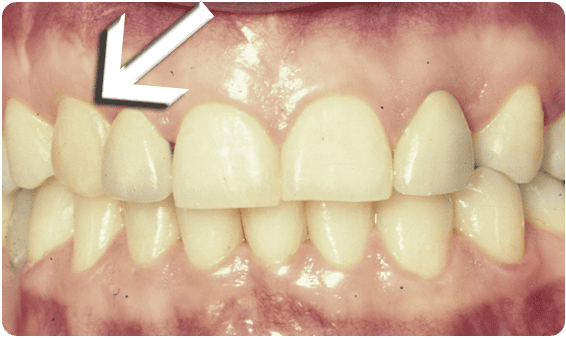 After Tooth Exposure - Baysidedentist.com
