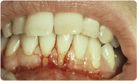 Before Soft Tissue Grafts - Baysidedentist.com