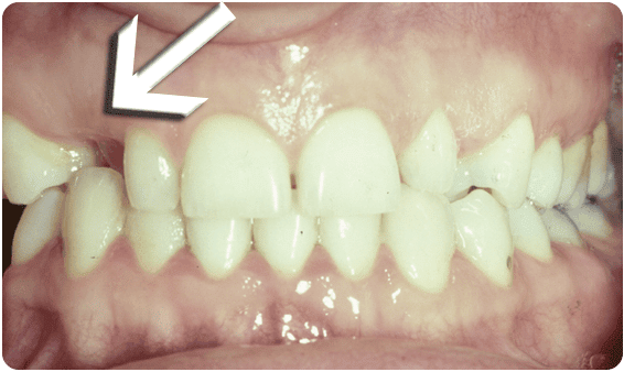 Before Tooth Exposure - Baysidedentist.com