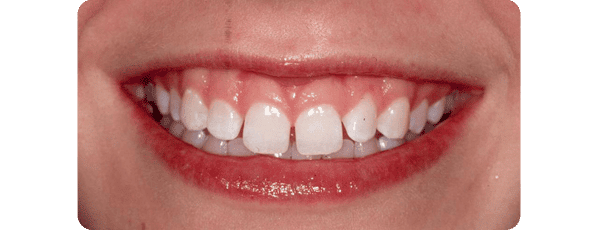 Before Procedure - Baysidedentist.com