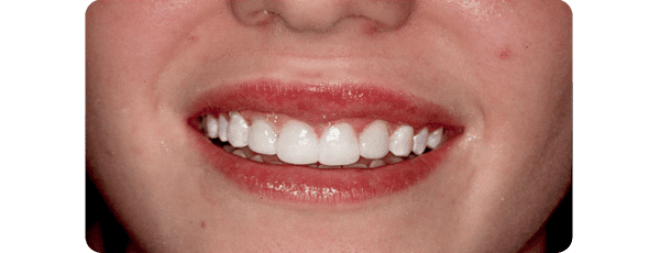 InsideImage Procedure - Baysidedentist.com