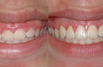 Tooth lengthening