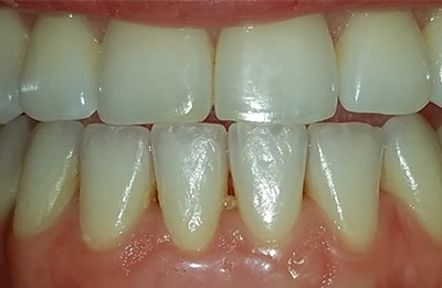 Periodontal Gum Treatment services