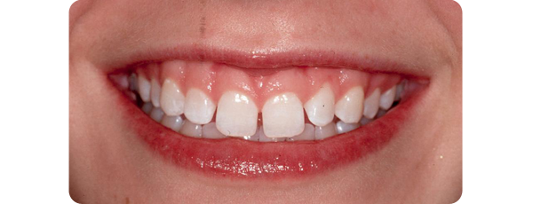 A smile with wide gaps between the teeth prior to procedure