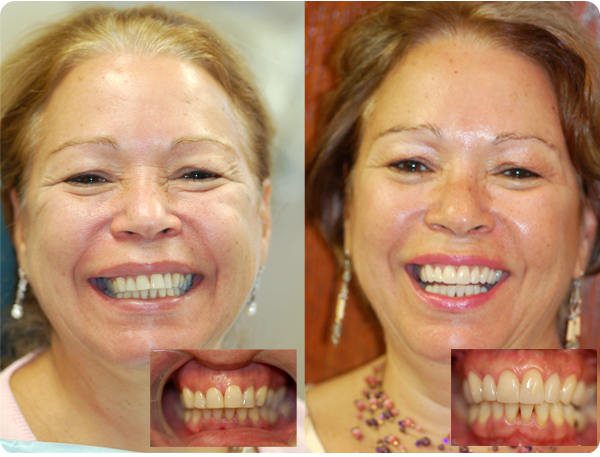 A before and after picture of someone who got a smile make-over. Her teeth appear whiter and healthier in the after picture
